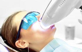 Методы отбеливания зубов в современной стоматологии
