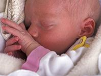 Дефицит витамина D у новорожденных связали с рассеянным склерозом