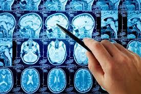 Препарат для лечения СДВГ эффективен в терапии последствий травм мозга
