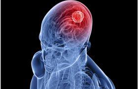 Ученые придумали новый метод лечения рака мозга