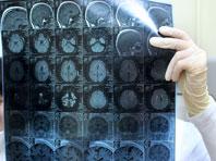 Обнаружена область мозга, отвечающая за кому