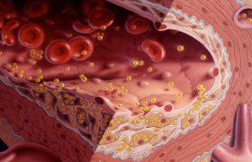 Атеросклероз – легче предупредить