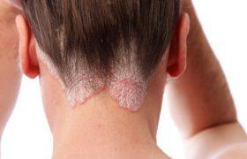 Псориаз на голове: причины и лекарства