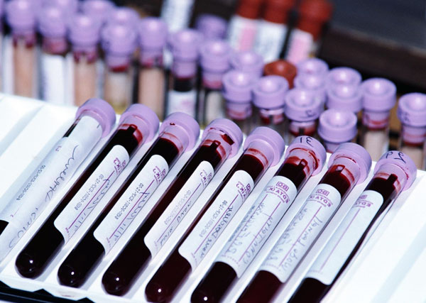 Правила сдачи крови на гормоны щитовидной железы
