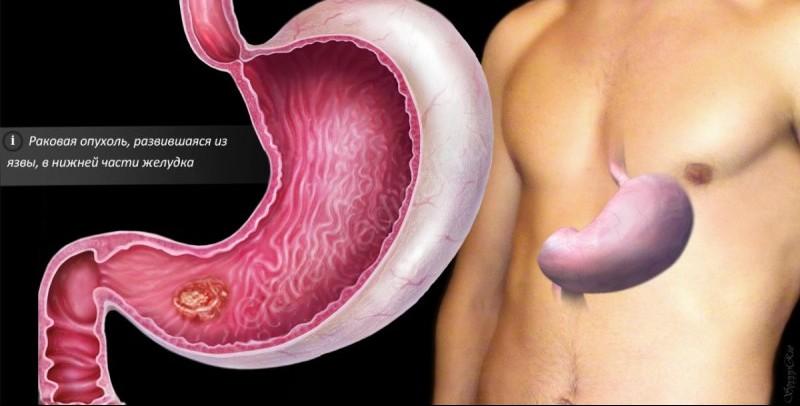 Почему возникает и как предупредить рак желудка?