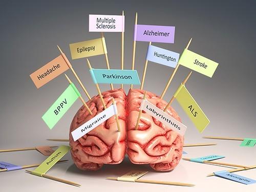Между болезнями Паркинсона, Альцгеймера и Хантингтона есть сходство