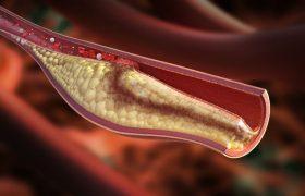Пациентам после инфаркта миокарда нужны антитабачные средства