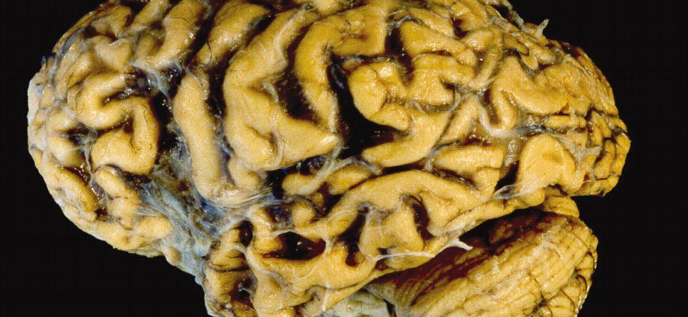 Оливопонтоцеребеллярная атрофия (ОПЦА)