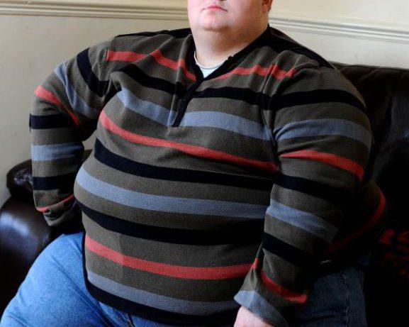 Церебральное ожирение