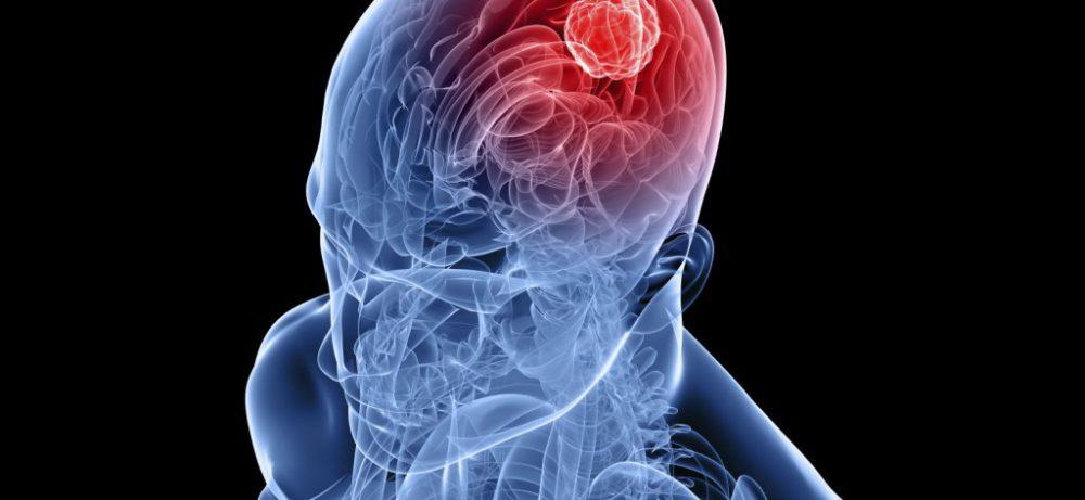 Использование кортикостероидов при опухолях ЦНС