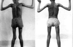 Нобелевский лауреат предлагает лечение для миодистрофии Дюшена