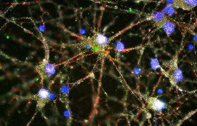 Как доход влияет на мозг