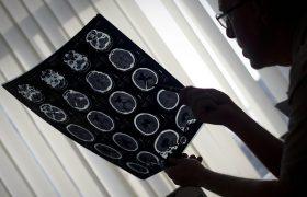 Ученые выяснили, как индивидуальный опыт человека влияет на анатомию его мозга