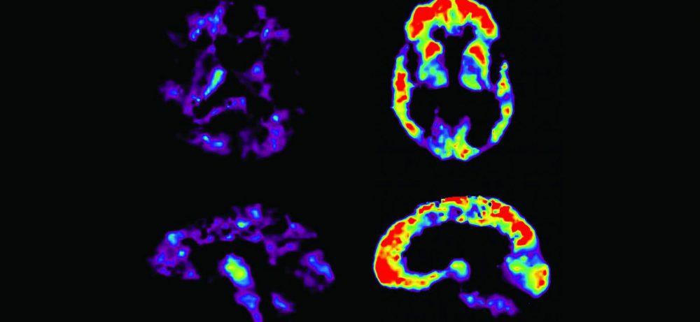 Аспирин защитил мозг мышей от проявлений болезни Альцгеймера