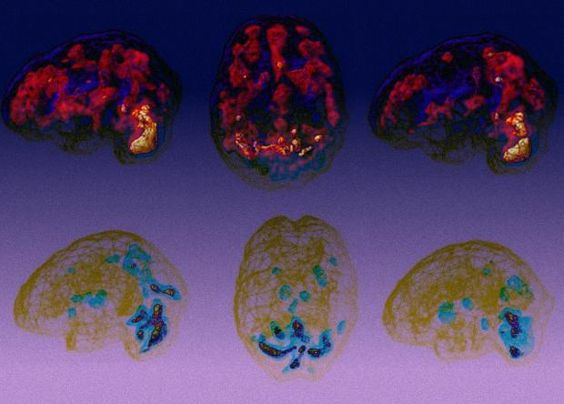 Марихуана состарила головной мозг почти на три года