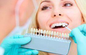 Профессиональное отбеливание зубов – главный шаг к красивой улыбке