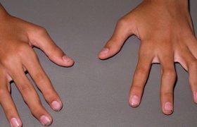 Артрит: классификация, диагностика, симптомы, лечение