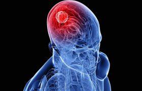 Характерные признаки рака головного мозга