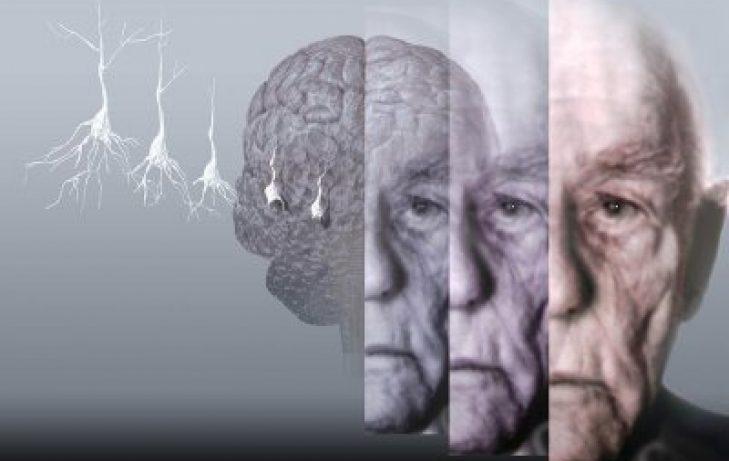 Можно ли остановить старение мозга?