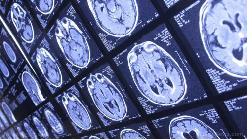 Ученые обнаружили соединение мозга с иммунной системой