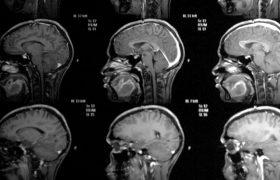 Риск рака мозга зависит от размера этого органа и количества клеток