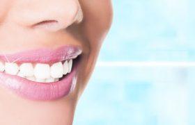 Отбеливание зубов — процедура для тех, кто мечтает о белоснежной улыбке