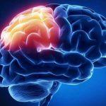 Что такое очаговое изменение вещества мозга дистрофического характера?