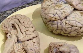 Ожирение связано с аномальным ответом мозга на сладости