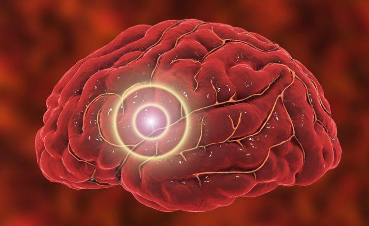 Ишемический инсульт головного мозга: последствия и прогнозы