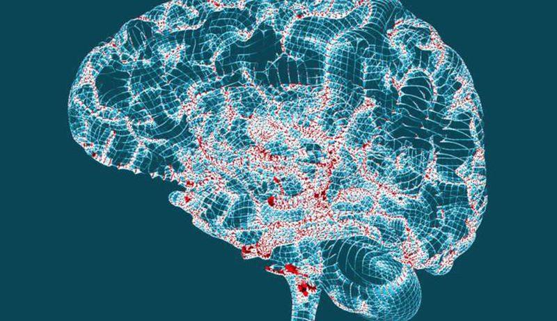 Болезнь Альцгеймера: 10 ранних признаков