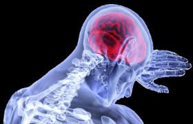 Современные методики лечения неврологических заболеваний