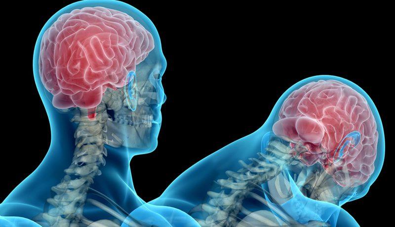 Сотрясение мозга: правила первой помощи