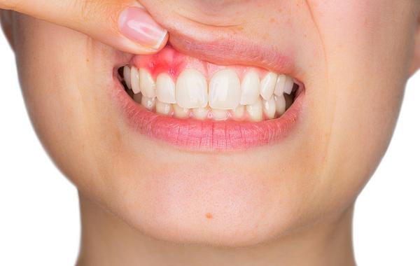 Лечение зубов: как предотвратить пародонтоз?