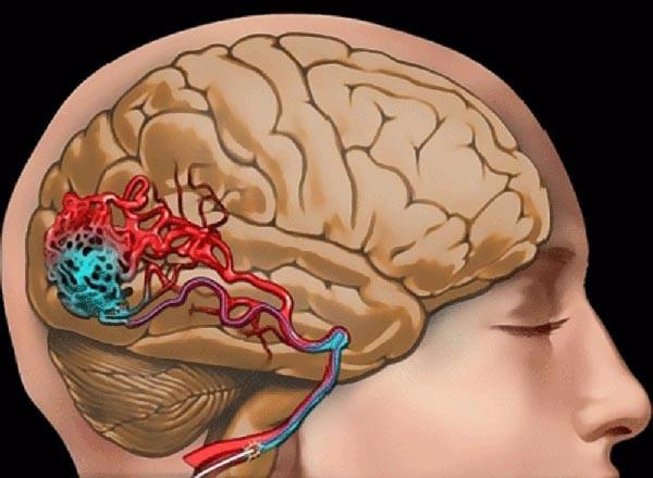 Сотрясение мозга: симптомы, признаки и помощь при сотрясении мозга