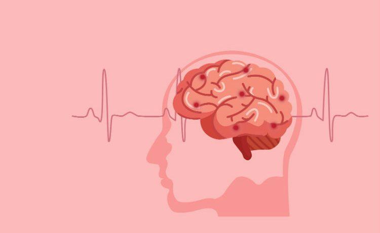 Стало известно, как очищается мозг во время сна
