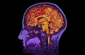 Ученые показали, как можно подавить развитие болезней мозга
