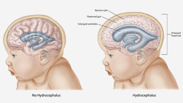 Нейропластичность мозга: зачем и как ее развивать