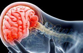 Симптомы транзиторной ишемической атаки могут быть предвестниками инсульта
