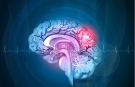 Первые симптомы инсульта головного мозга