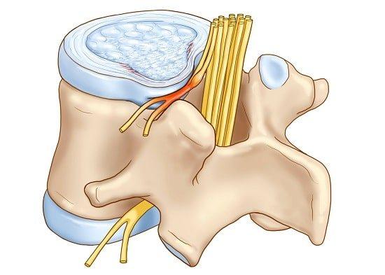 Защемление нерва в спине — что делать при ущемлении нерва