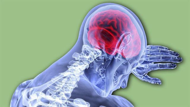 Атеросклероз сосудов головного мозга: причины и симптомы