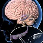 Болезнь Паркинсона: под прицелом мозг