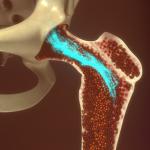 Костный мозг – где находится и какие функции выполняет?