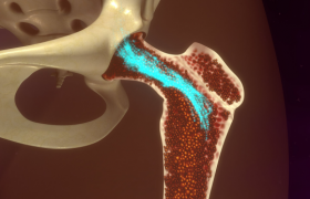 Что такое остеосинтез?