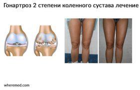 Гонартроз 2 степени коленного сустава. Способы лечение