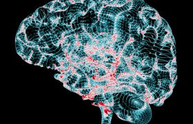 Выявлен механизм возникновения и развития болезни Паркинсона