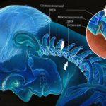 Цефалгия головного мозга – что это такое?