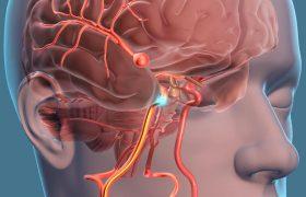Аневризма сосудов головного мозга – бомба замедленного действия