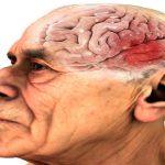 Не Альцгеймер: 8 причин ухудшения памяти и почему этот симптом нельзя пропустить