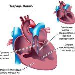 Перебои в работе сердца: что делать?
